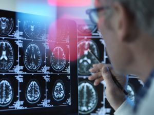 Dr scaning brain cells for memory loss